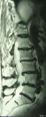 IRM rétrécissement du canal lombaire avec hernie discale L5 S1