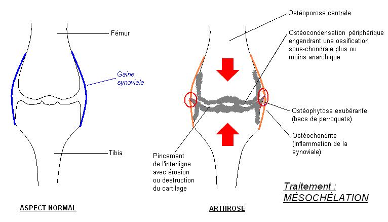 Schémas de l'arthrose du genou