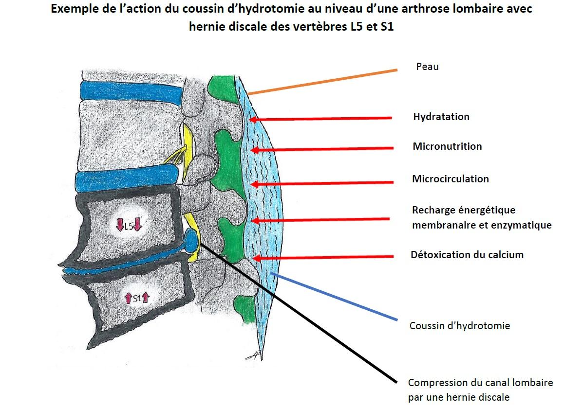 coussin d'hydrotomie arthrose lombaire