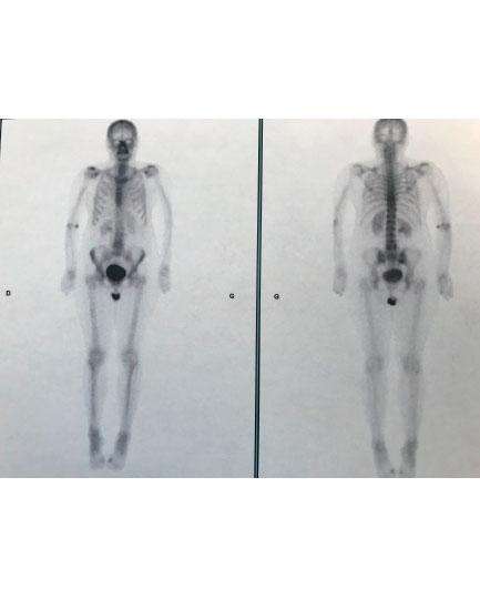 Disparition des lombalgies